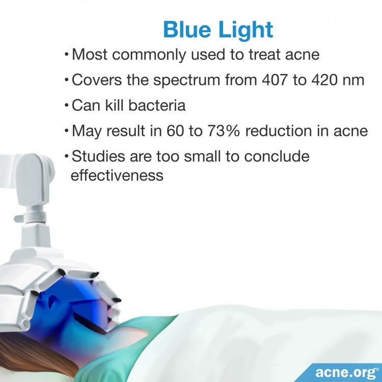 Do Blue And Red Light Devices Work To Clear Acne Acne Org