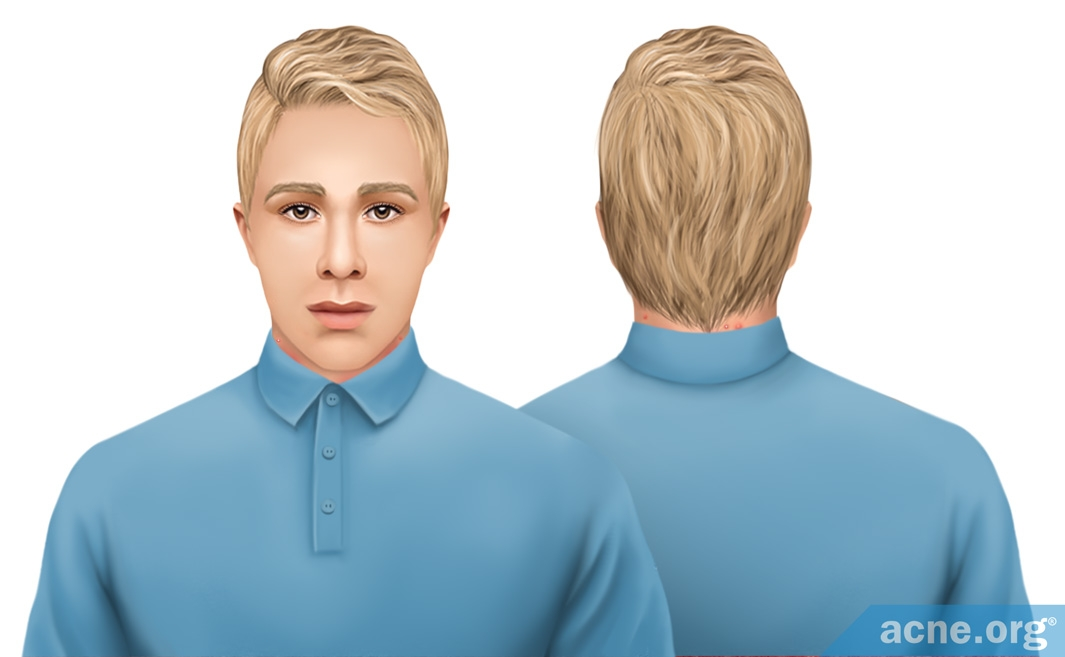 Neck Irritation from Buttoned Collar