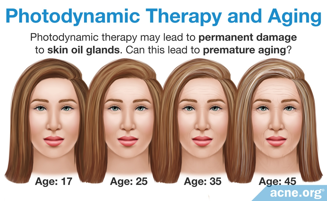 Photodynamic Therapy and Aging
