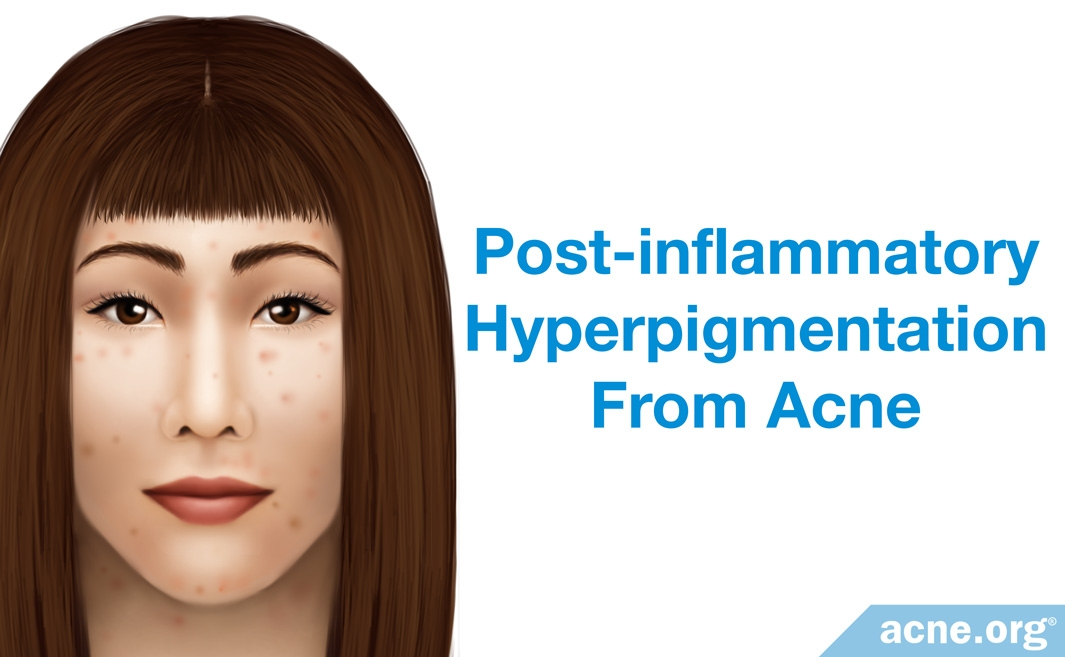 Post-inflammatory Hyperpigmentation from Acne
