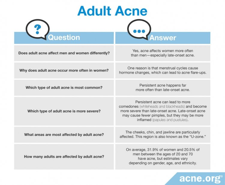 Questions and Answers About Adult Acne