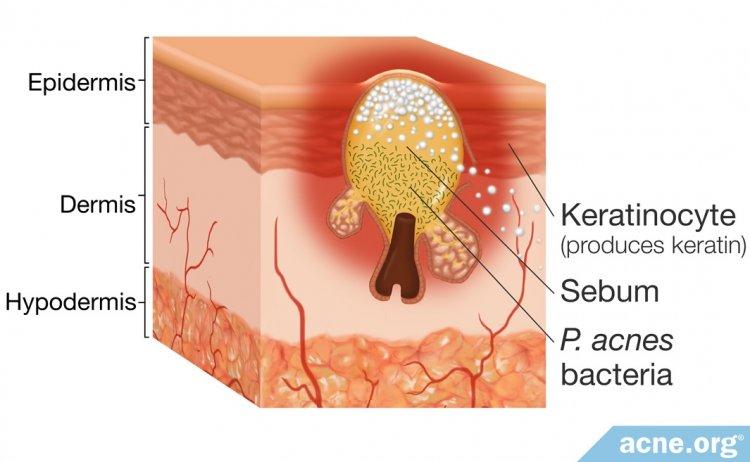 Sebum in the Skin
