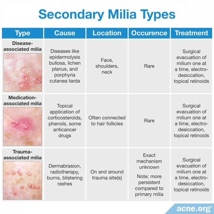 Secondary Milia Types