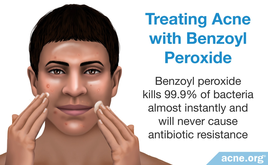 Treating Acne with Benzoyl Peroxide