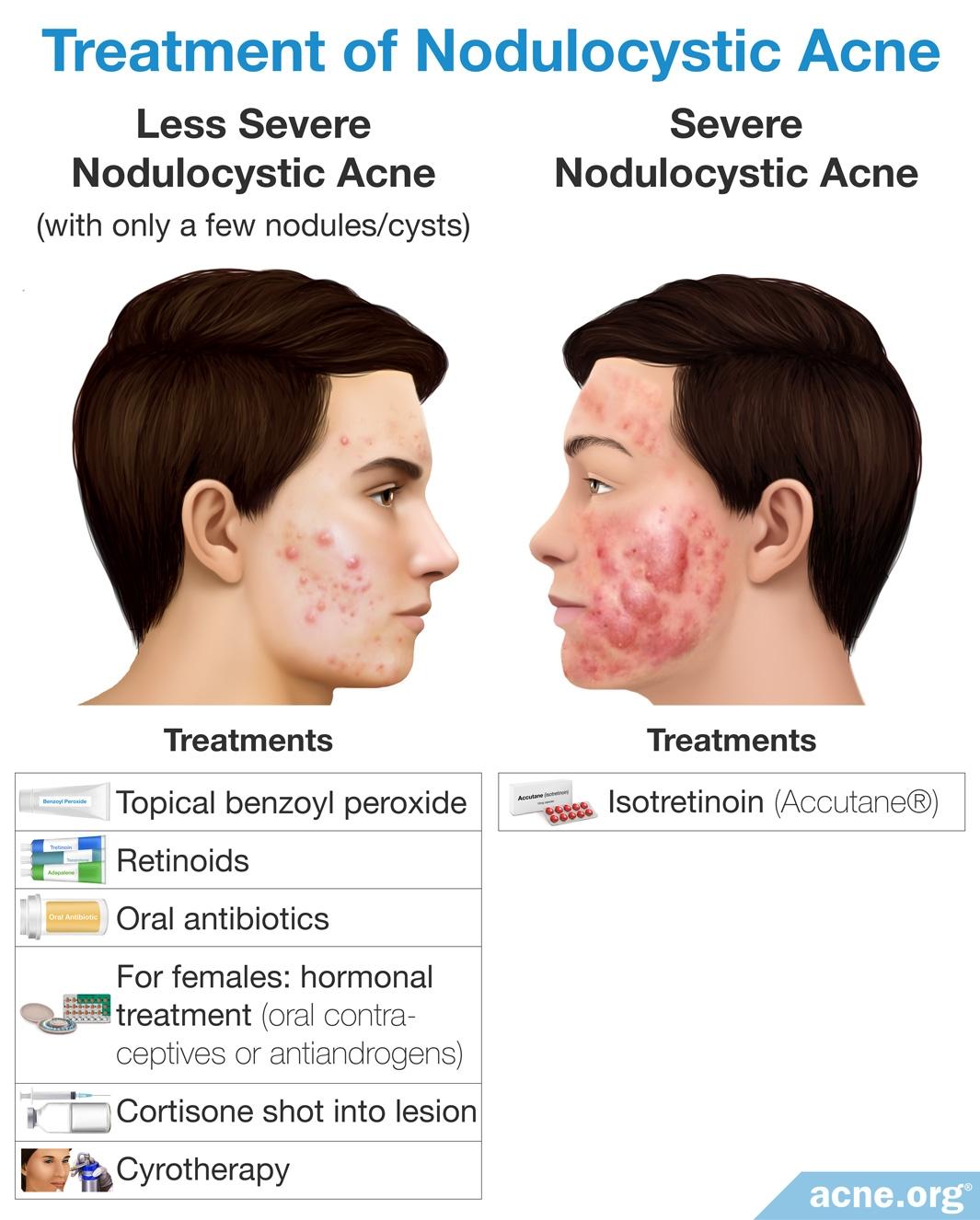 Treatment of Nodulocystic Acne
