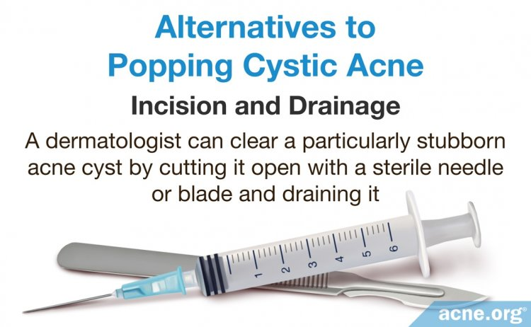 Alternatives to Popping Cystic Acne - Incision and Drainage