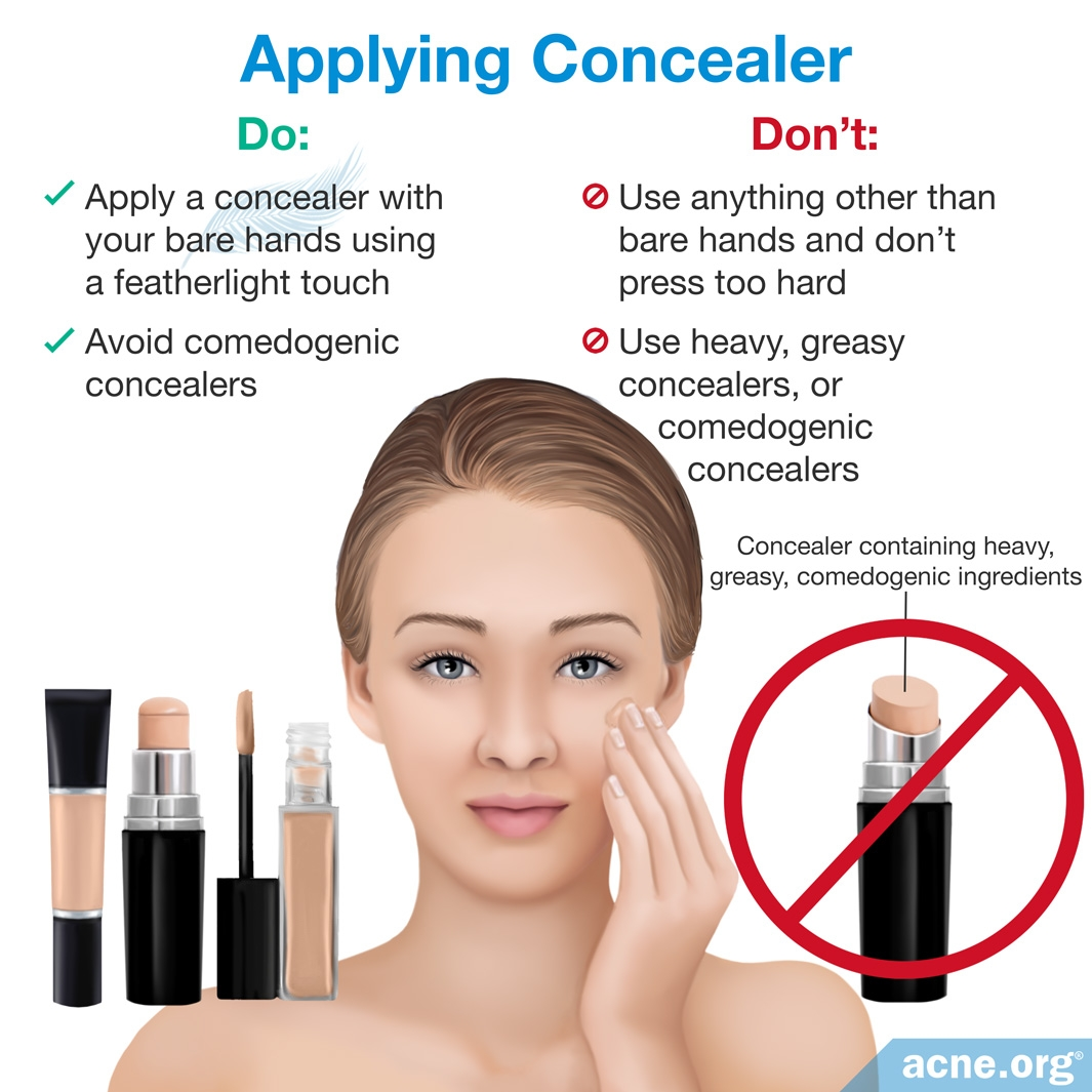 Applying Concealer to Acne-prone Skin