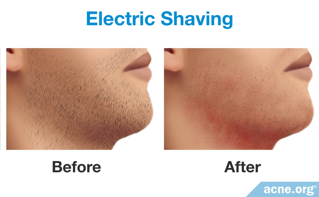 Before and After Electric Shaving