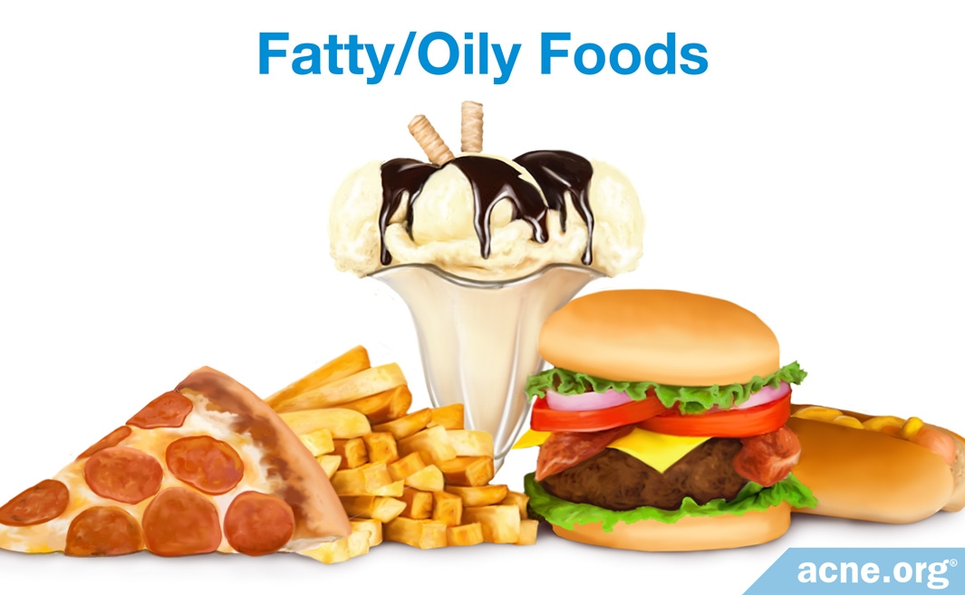 Fatty, Oily Foods and Acne