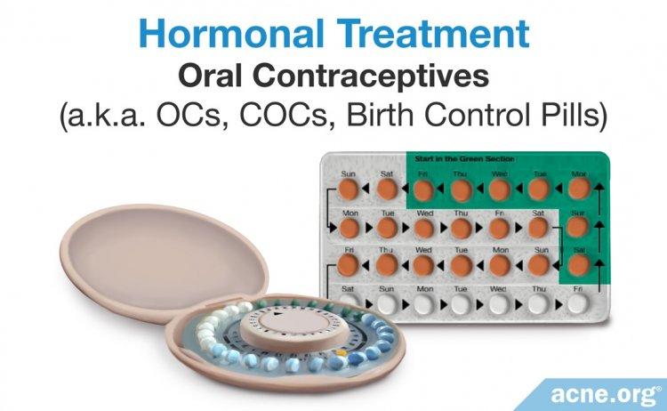 Hormonal Acne Treatment: Oral Contraceptives