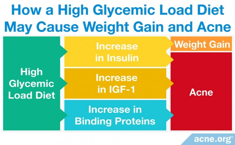 How a High Glycemic Load Diet May Cause Weight Gain and Acne