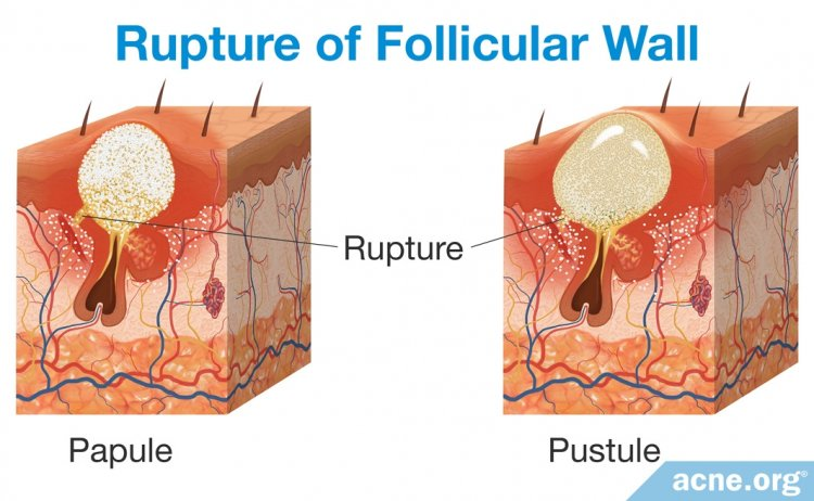 Rupture of Follicular Wall