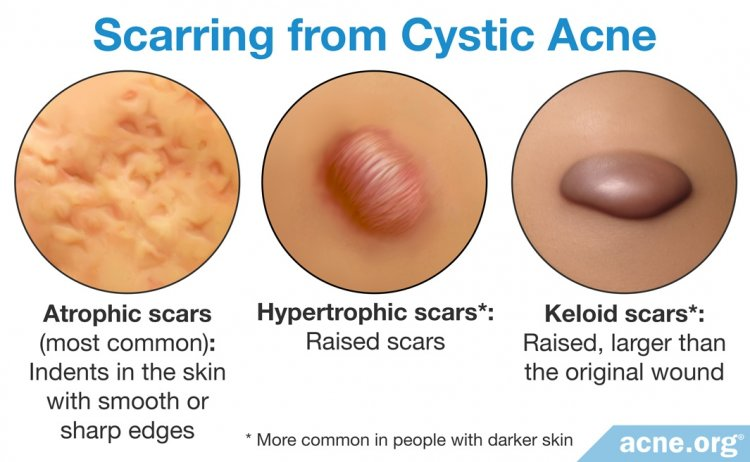 Scarring from Cystic Acne