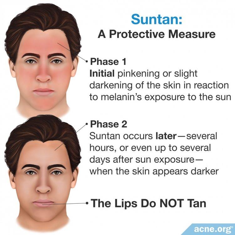 Suntan: A Protective Measure