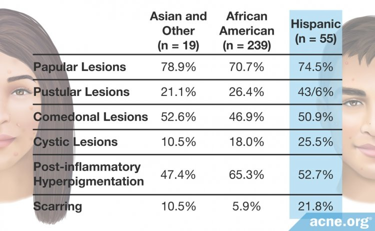 Types of Acne by Ethnicity