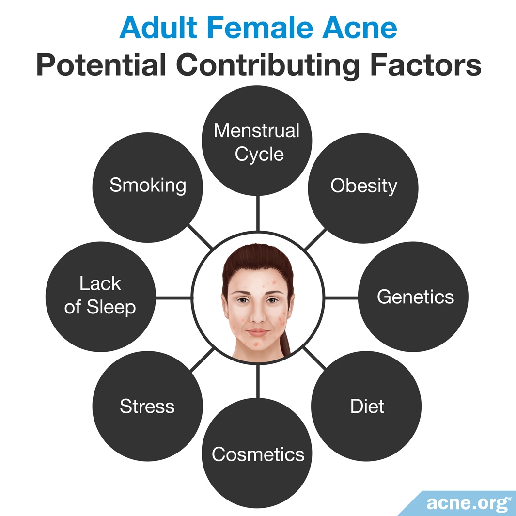 Adult Female Acne: Potential Contributing Factors
