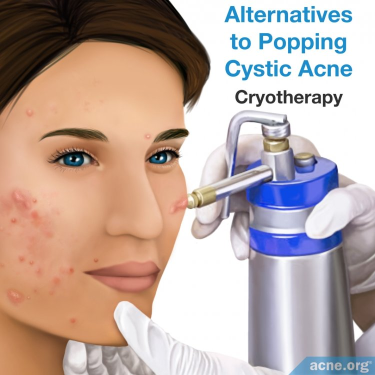 Alternatives to Popping Cystic Acne - Cryotherapy