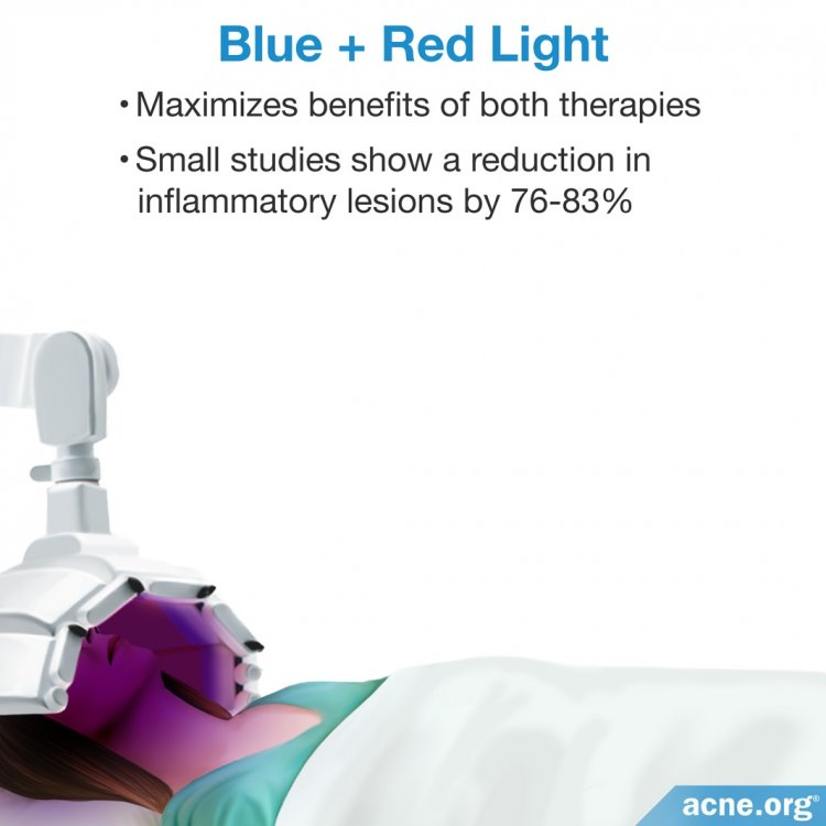 Light Therapy - Blue and Red Light