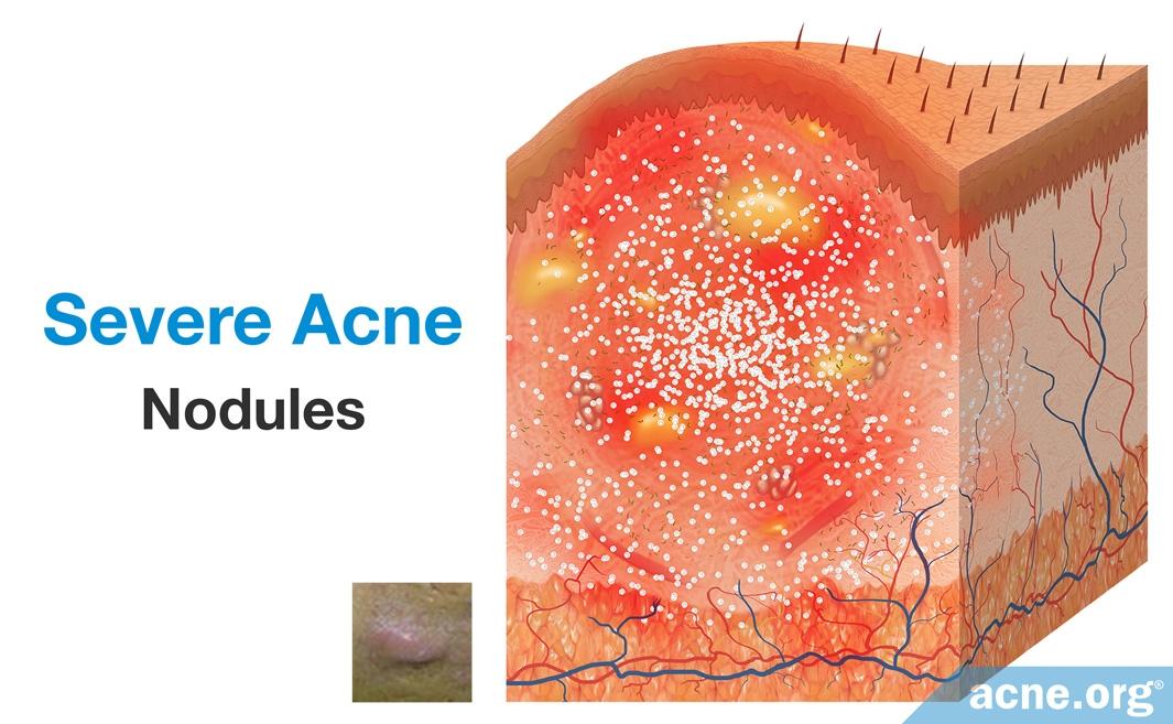 Severe Acne: Nodules