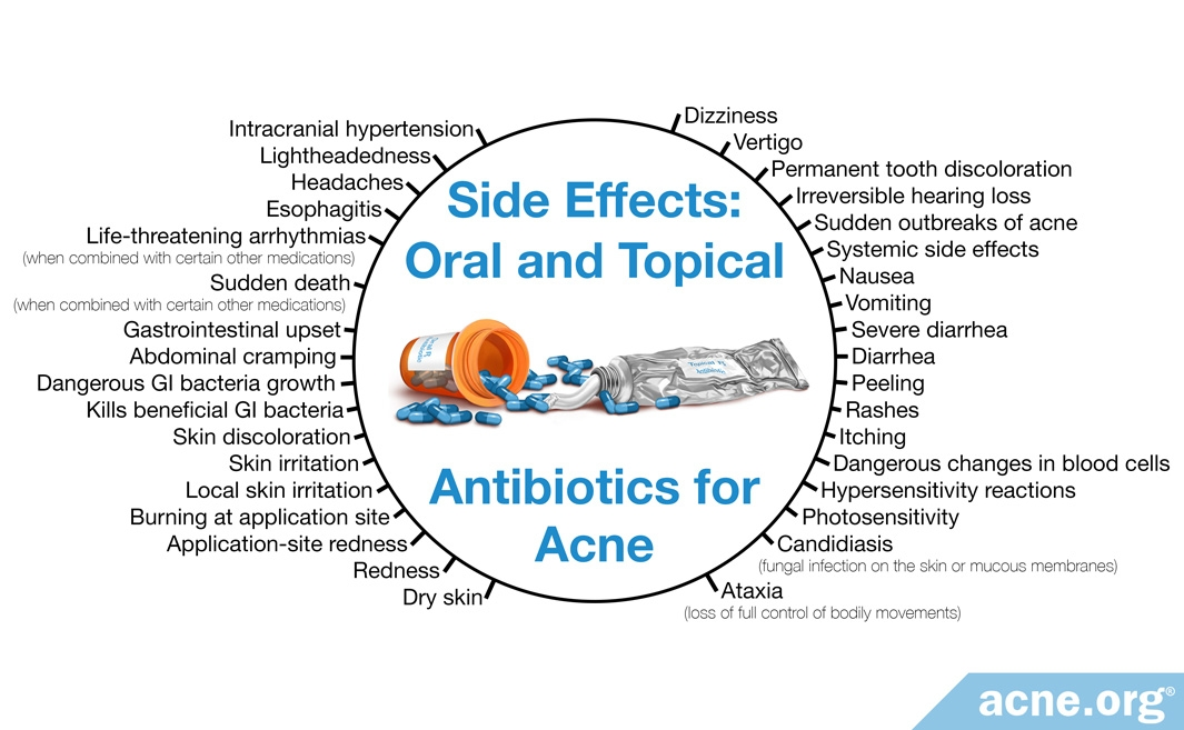 Are Antibiotics a Good Idea for the Treatment of Acne? - Acne org