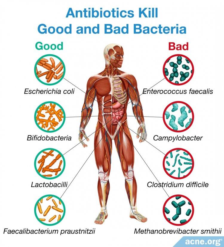 Antibiotics Kill Both Bad and Good Bacteria