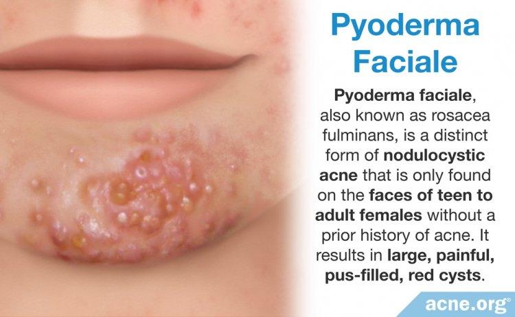 Pyoderma Faciale