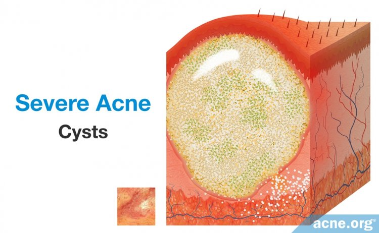 Severe Acne: Cysts