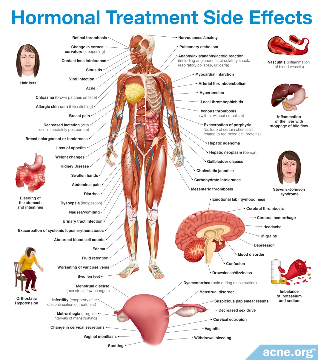 Side Effects of Hormonal Treatment
