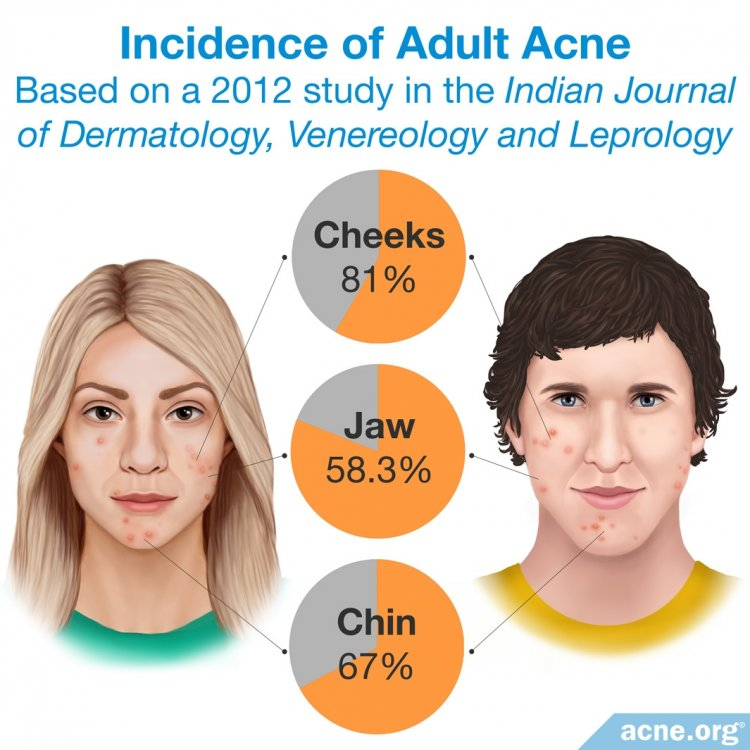 Incidence of Adult Acne on Cheeks, Chin and Jaw Area