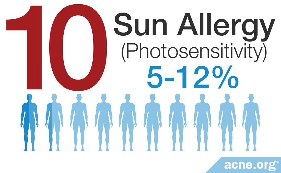 Photosensitivity - 5-12%