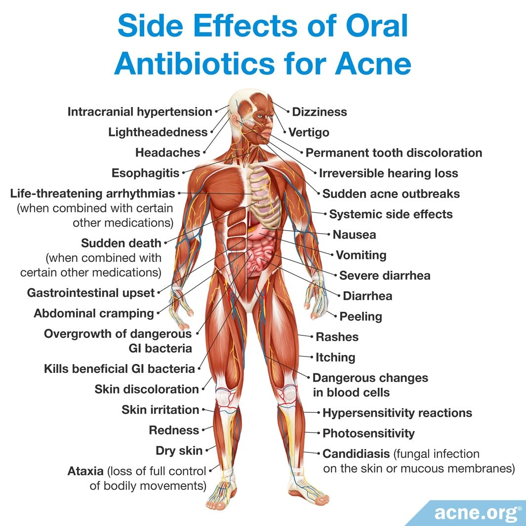 Prescription Medications For Acne Acne