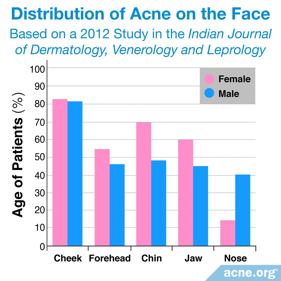 Distribution of Acne on Face: By Gender