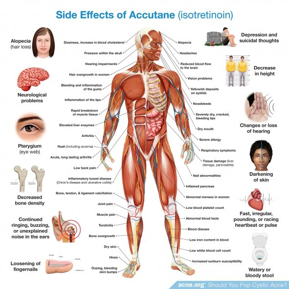 Side Effects of Accutane (isotretinoin)
