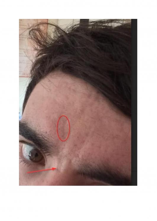 scars2-1.jpg