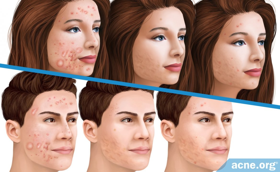 What Is the Actual Relapse Rate of Accutane (Isotretinoin)?