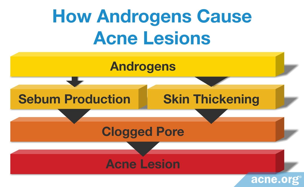 How Androgens Cause Acne Lesions