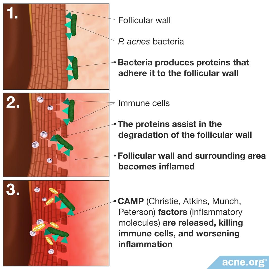 Role of P. acnes in Acne Development