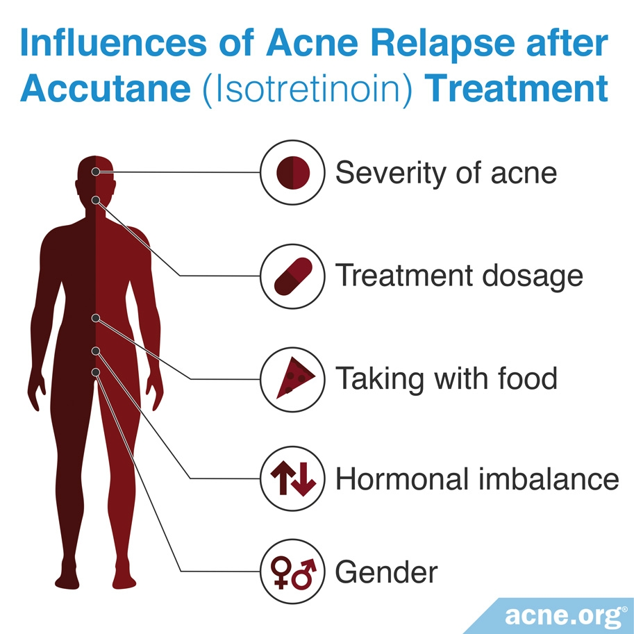 Factors Affecting Acne Relapse Rate After Accutane (isotretinoin) Treatment