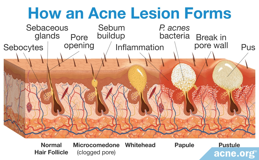How an Acne Lesion Forms