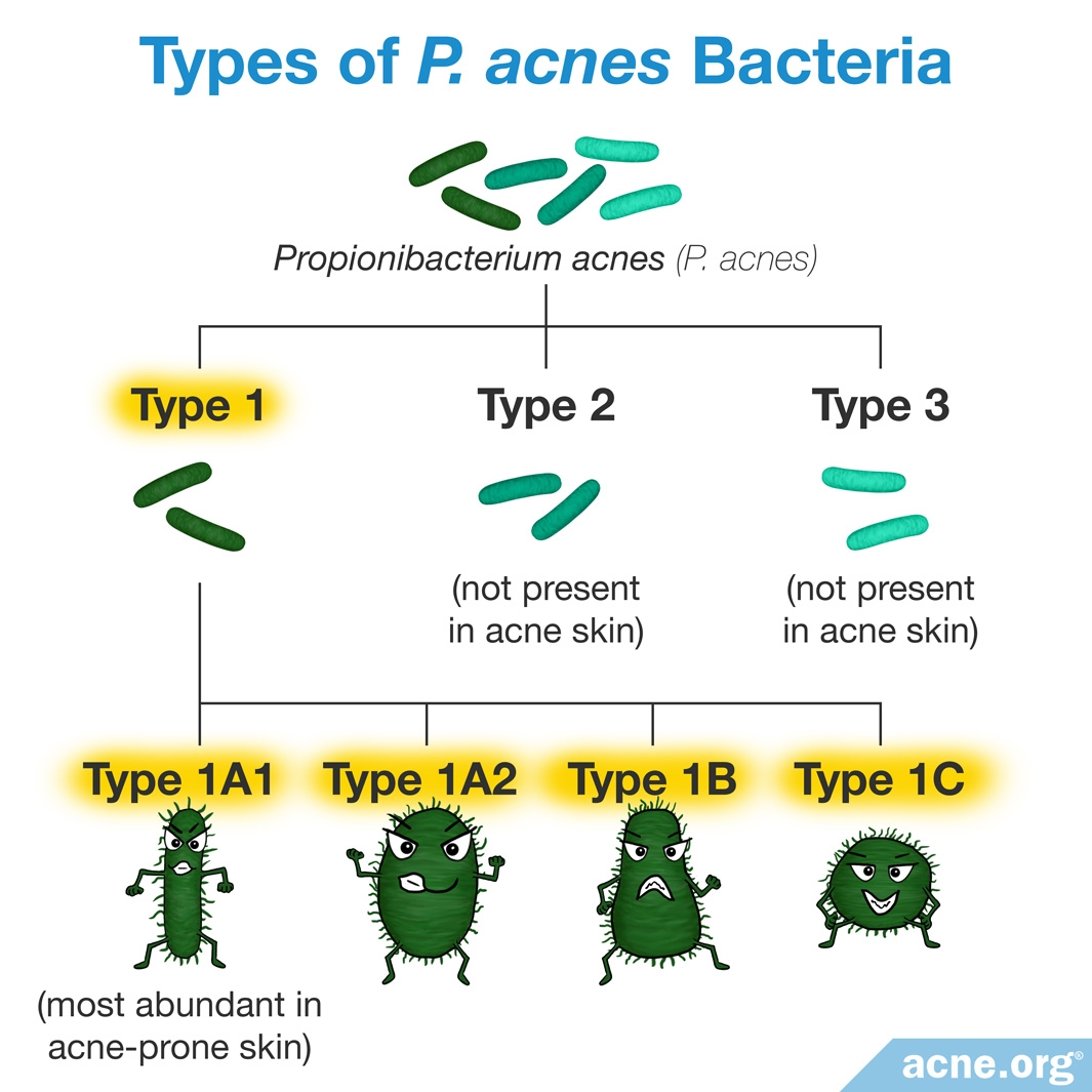 Types of P. acnes Bacteria