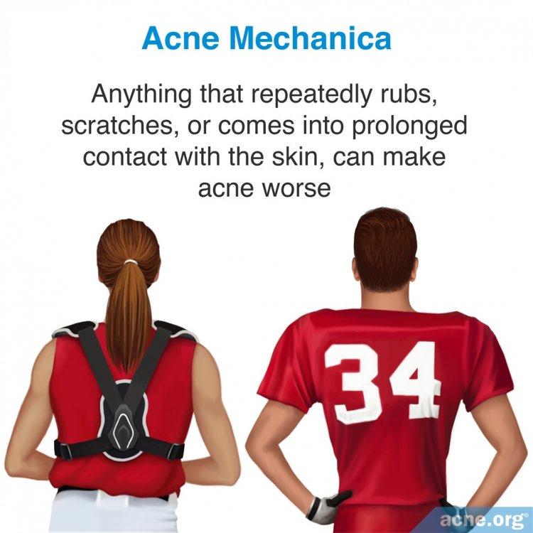Acne Mechanica