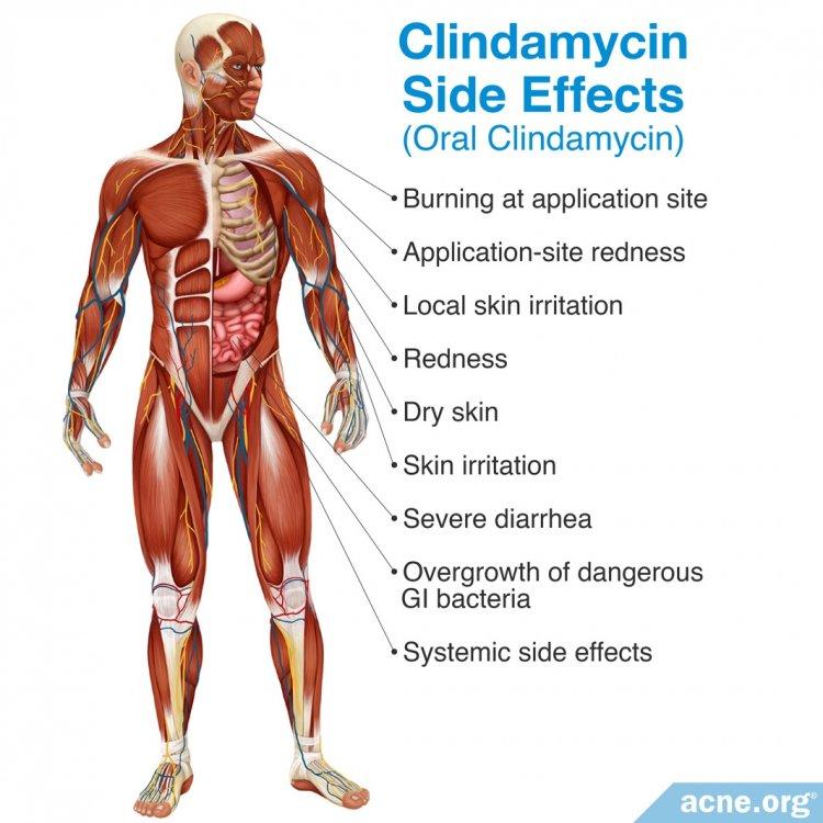 Clindamycin Side Effects