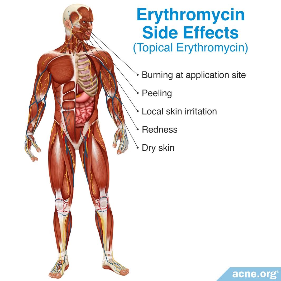 Erythromycin Side Effects