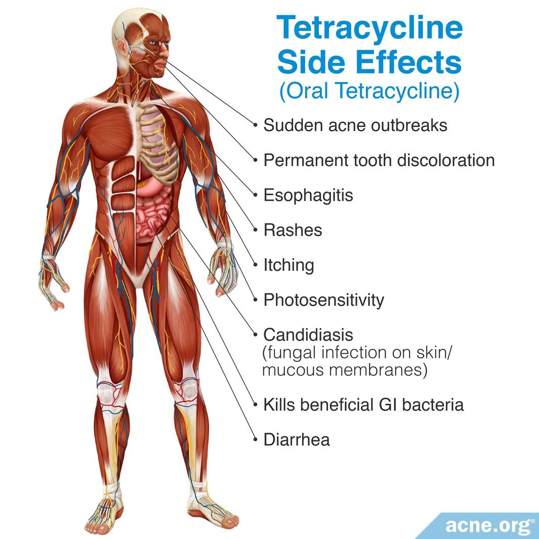Tetracycline Side Effects