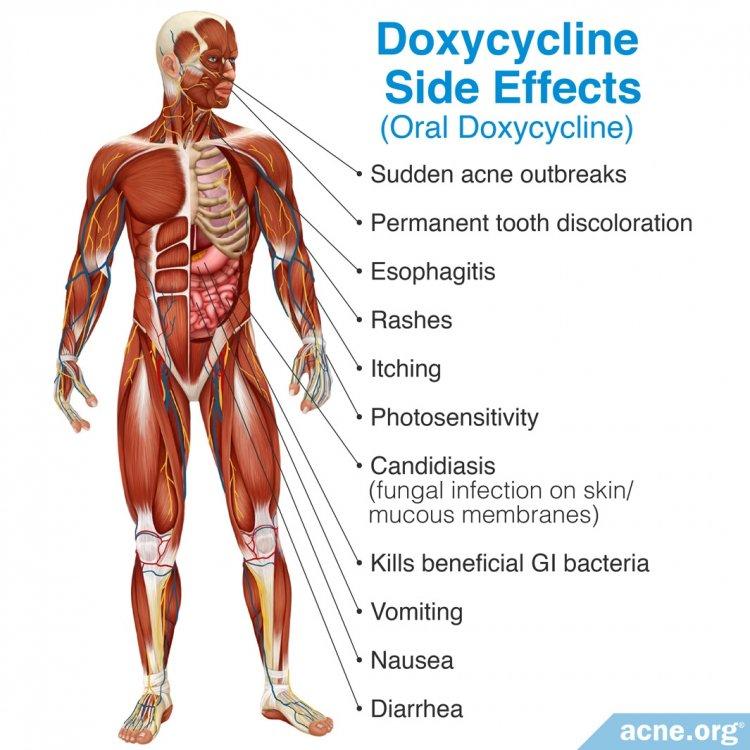 Doxycycline Side Effects