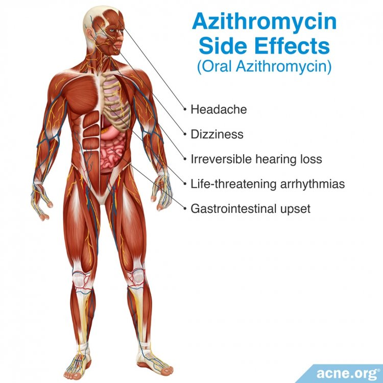 Azithromycin Side Effects