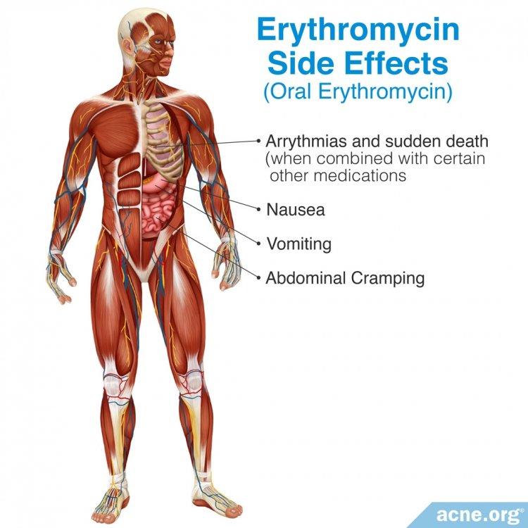 Oral Erythromycin Side Effects