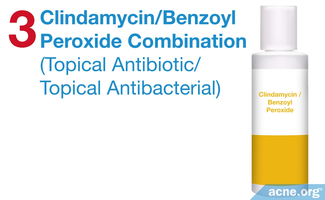 Clindamycin/Benzoyl Peroxide Combination Treatment