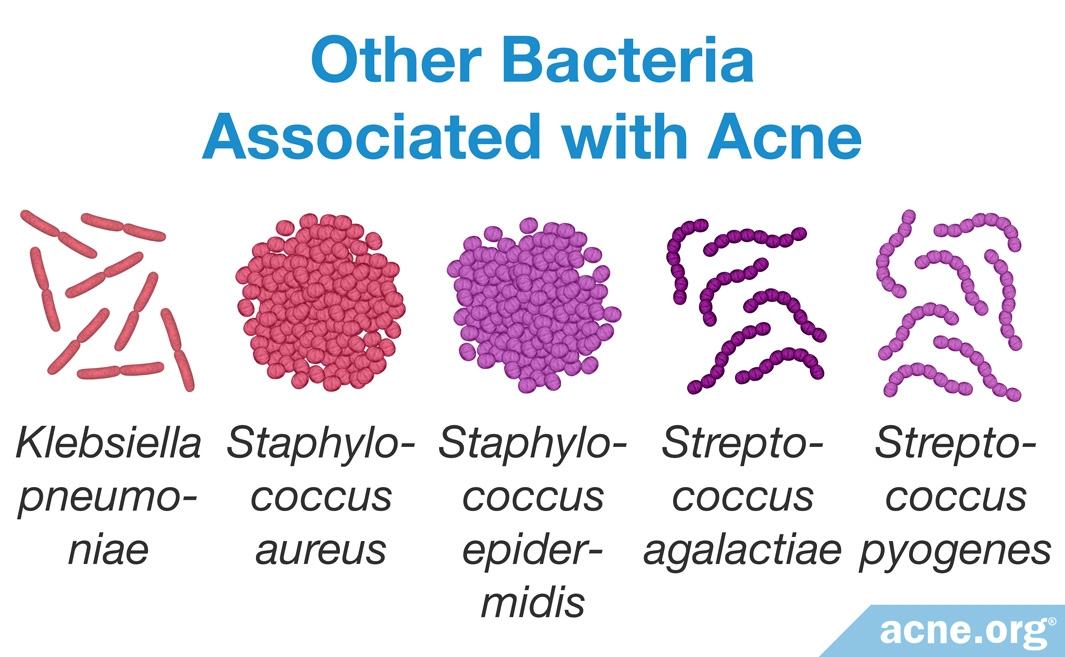 Other Bacteria Associated with Acne