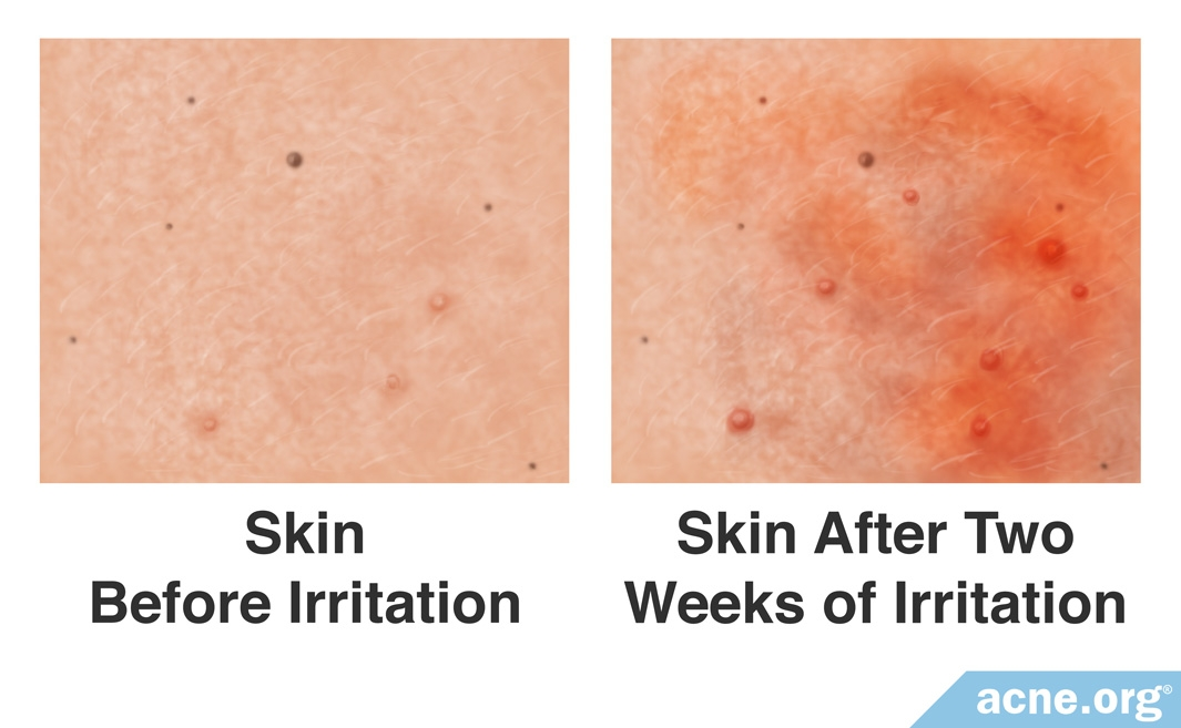 Skin Before and After Irritation
